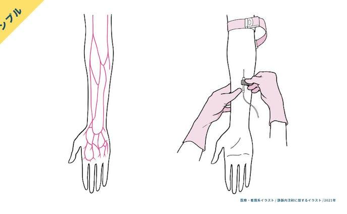 【サンプル】静脈注射の手技・前腕の血管走行