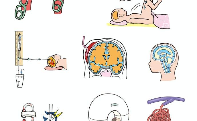 『ブレインナーシング 2020年5月号(第36巻5号)特集:術後ケアのポイントがミニツク 治療部位別・術式別 キホンの看護』挿絵