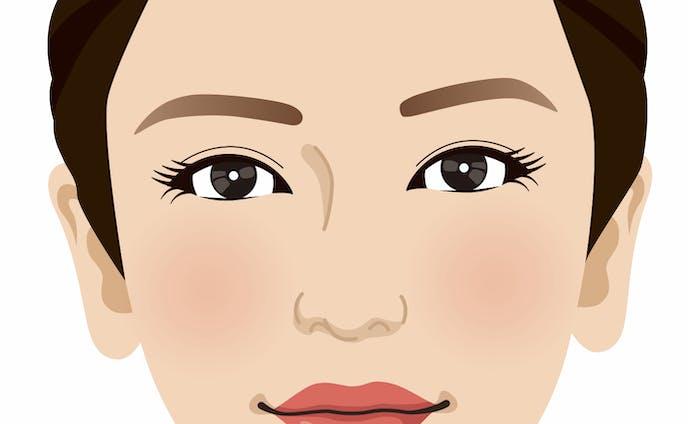 美容外科女性イラスト